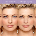 Derma Fillers & Injectables