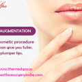 Lip Augmentation Surgery to Enlarge the Size of Lips by Injecting Fillers