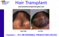 Hair Transplant to Overcome Baldness and Have Younger Looks