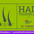 Hair Surgery for Getting Hairs Transplanted On Bald Area