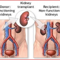 Kidney Transplant Journey in India Can Give You the Gift of Life
