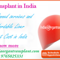 Get well-planned services and most affordable Liver Transplant Cost in India