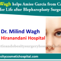Aimee from California is Grateful to Dr Milind Wagh for her Blepharoplasty Surgery