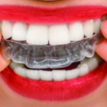 What are the Important Things To Know In Choosing Invisalign Brace in Brickell, Florida?