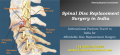Get relief for you back with Spinal Disc Replacement Surgery in India